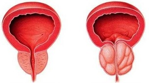 how and how to treat chronic prostatitis